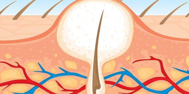 ازالة الشعر من المناطق الحساسة بدون الم